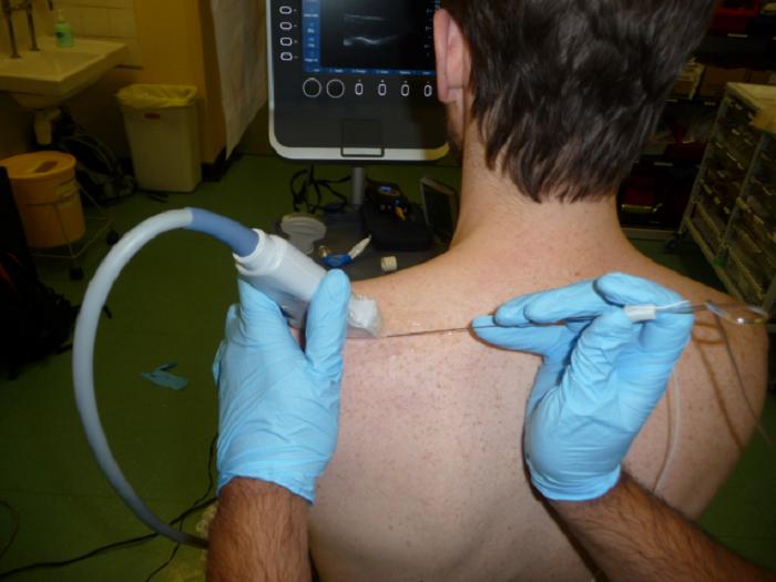 تزریق بلوک عصب سوپرا اسکاپولار برای شانه درد چگونه انجام می شود؟