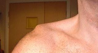 علائم دررفتگی مفصل شانه، کتف وبازو